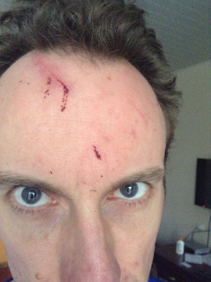 My head, with a cut on the forehead